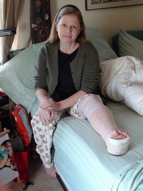 Broken leg 1